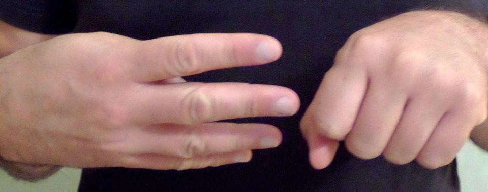 Association - association de défense des personnes implantées cochléaires