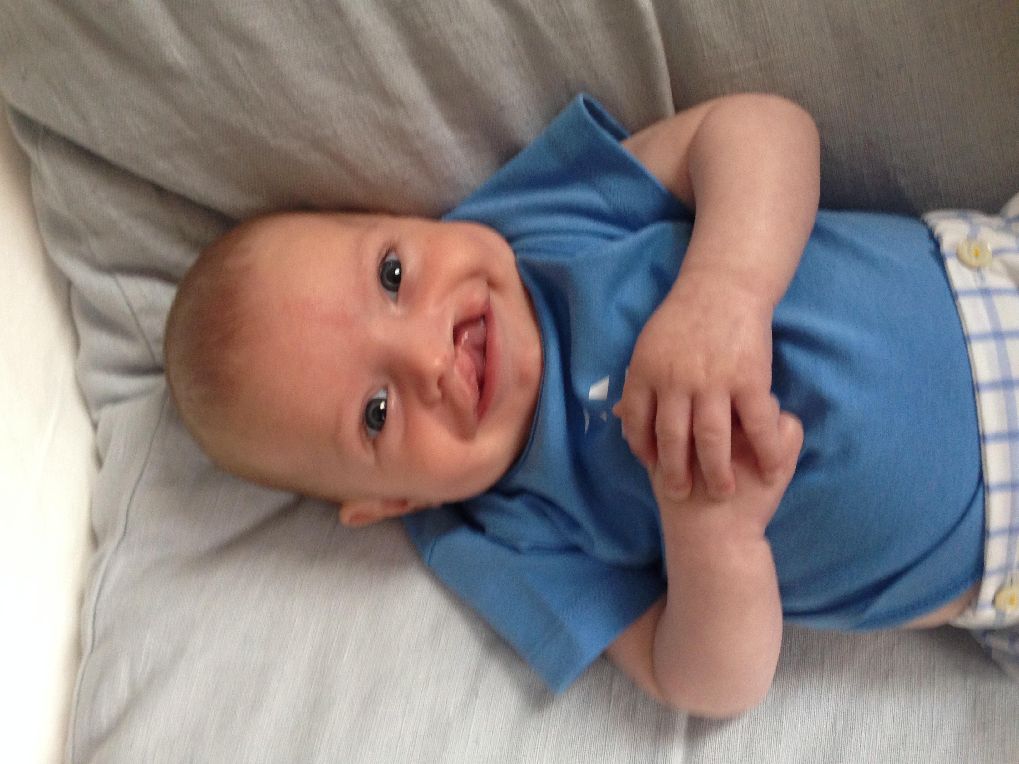 30 Jours pour donner un nouveau Visage à une petite fille née avec une fente Orbito-Faciale - FACE AU MONDE