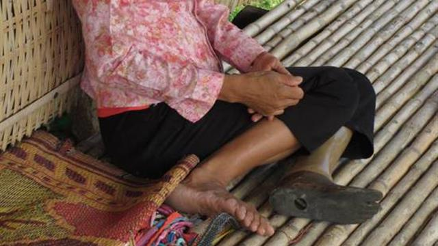 Give a new prosthetic leg to Gerup, thanks to 3D printing - AROONII