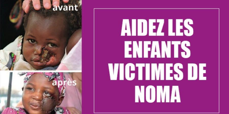 AIDEZ-NOUS A FAIRE RECULER LE NOMA ET SAUVER LA VIE D'ENFANTS - Stop Noma